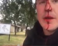 VIDEO: Pro-Life Christian Bro BEATEN Outside Of Abortion Clinic Just For Saying This