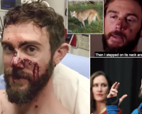WATCH: Bro Who Get Mountain Lion With His BARE HANDS Shows Off His Injuries