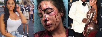 NFL Player's Ex Gets The Stuffing Beaten Out Of Her, Says 'It Wasn't Me' -- Do You Believe Him?