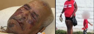 92yr. Old Bro Was Beat With A Brick By This Piece Of Work - Is That A 'Hate Crime?'