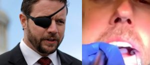 SAVAGE: Dan Crenshaw Unloads On 'Beto' For His Live-Streamed Dental Cleaning Stunt