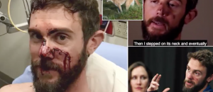 WATCH: Bro Who Kills Mountain Lion With His BARE HANDS Shows Off His Injuries
